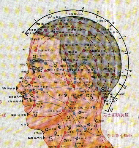 map-agopuntura01